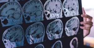 Vets with TBI at Increased Risk for Dementia